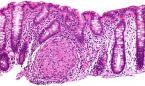 Unos nuevos reguladores controlan la inflamación de la enfermedad de Crohn