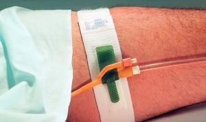 Urología: el kit de sondaje vesical mejora la eficiencia de las enfermeras