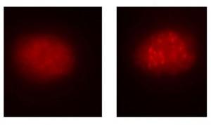 Utilizan Crispr para corregir los defectos que generan la anemia de Fanconi