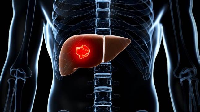 ¿Cómo se realiza el diagnóstico del adenoma hepático?