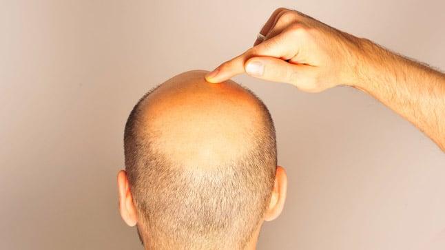 ¿Cómo se diagnostica la alopecia?