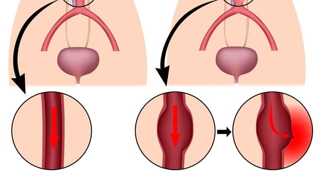 Causas, síntomas y tratamiento de una aneurisma aórtico