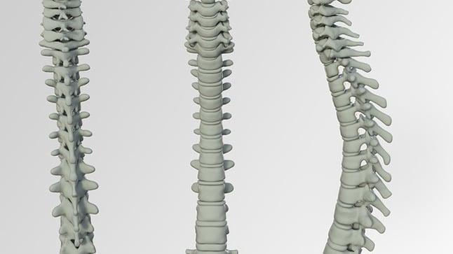 ¿Pueden prevenirse la osteoporosis y las fracturas?