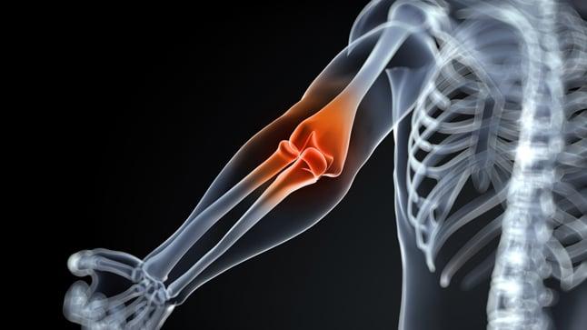 Causas, síntomas y tratamiento de la artritis reactiva