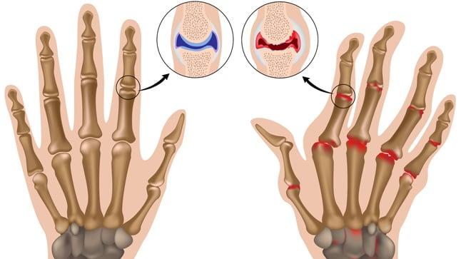 Causas, síntomas y tratamiento de la artritis reumatoide