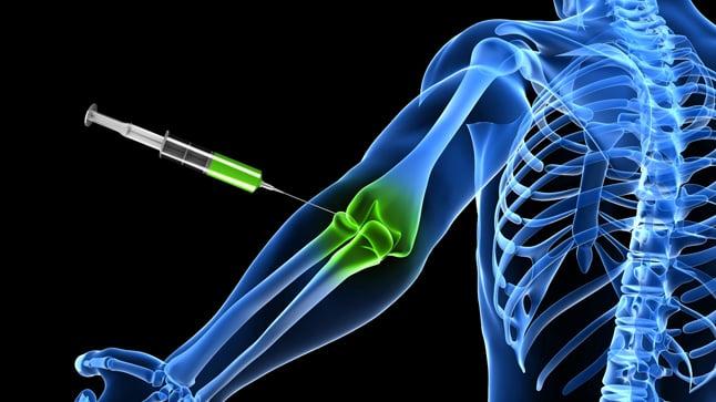 Contraindicaciones de la artrocentesis
