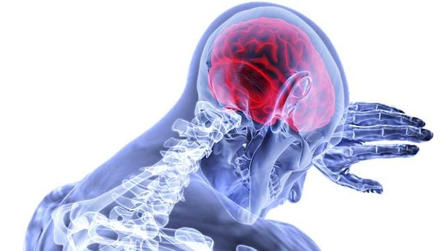 ¿Cómo se diagnostica un ataque isquémico transitorio?