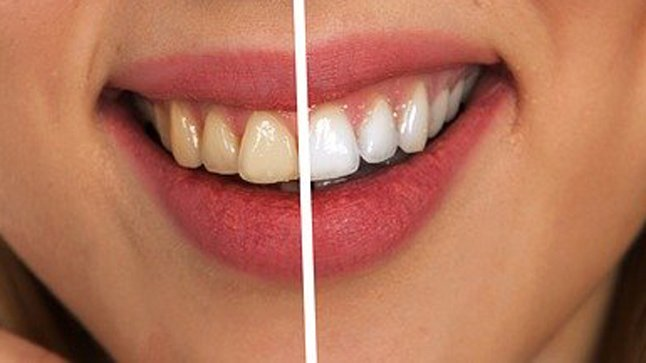 ¿Para quién está indicado un tratamiento de blanqueamieno dental?