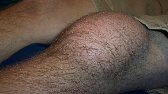 Causas, síntomas y tratamiento de la bursitis