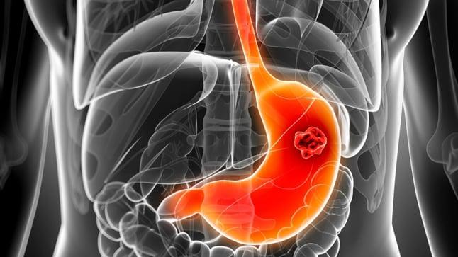 Causas, síntomas y tratamiento del cáncer de estómago