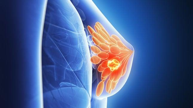Causas, síntomas y tratamiento del cáncer de mama