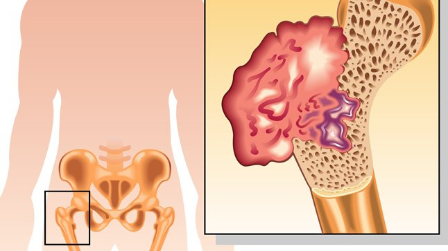 Tipos, causas y tratamiento del cáncer óseo