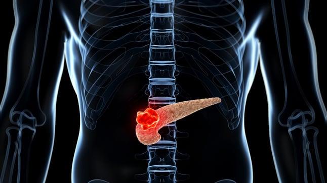 Causas, síntomas y tratamiento del cáncer de páncreas