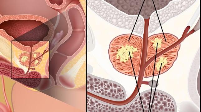Causas, síntomas y tratamiento del cáncer de próstata