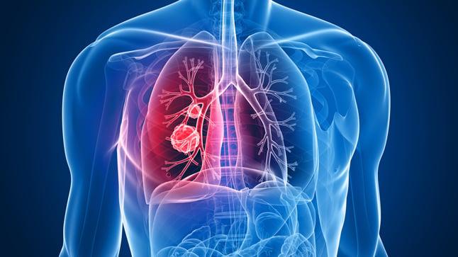 ¿Cómo se realiza el diagnóstico del cáncer de pulmón?