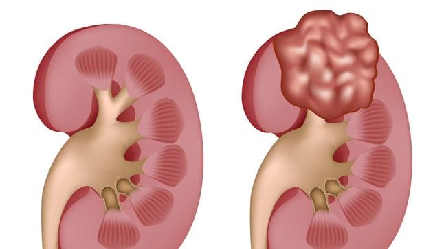 Causas, síntomas y tratamiento del cáncer de riñón