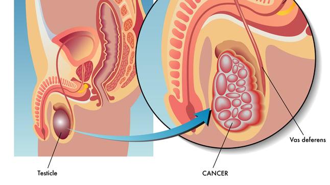 Causas, síntomas y tratamiento del cáncer de testículos