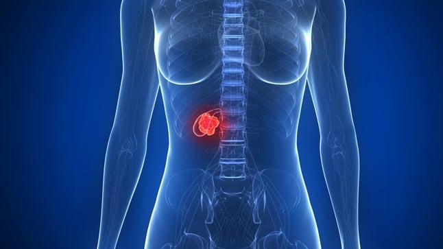 Cauas, síntomas y tratamiento del cáncer de vesícula