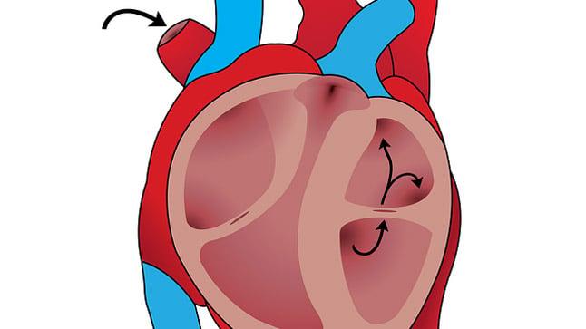 ¿Cuál es el pronóstico de la cardiopatía isquémica?