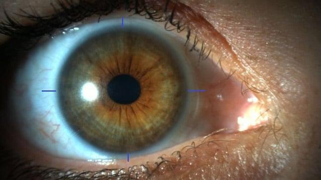 Riesgos de la cirugía refractiva del astigmatismo