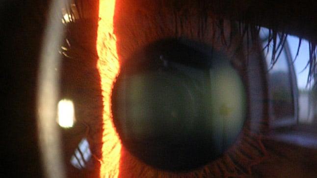Riesgos de la cirugía refractiva de la hipermetropía