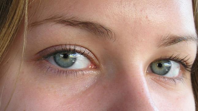 Riesgos de la cirugía refractiva de la miopía