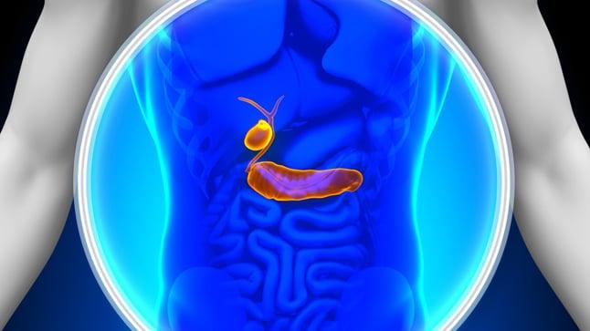 Causas, síntomas y tratamiento de la colangitis esclerosante primaria