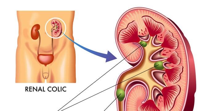 ¿Cuáles son las complicaciones del cólico nefrítico?