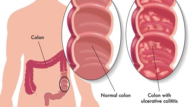 ¿Cuál es el pronóstico de la colitis ulcerosa?