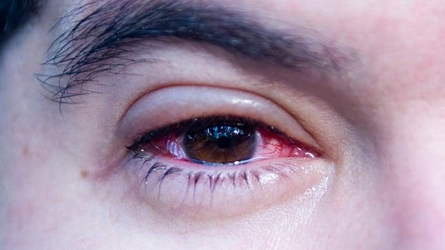 ¿Cómo se diagnostica la conjuntivitis?