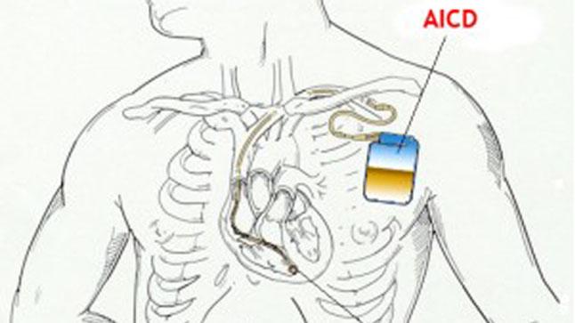 Cuidados en el día a día para pacientes con desfibrilador implantable