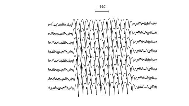 ¿Cómo se diagnostican las convulsiones?