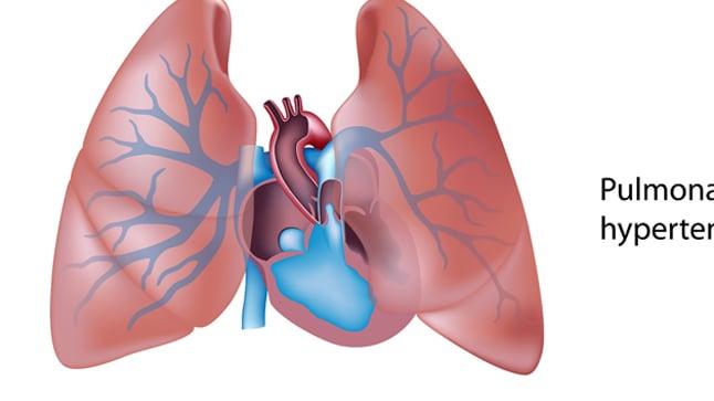 Causas, síntomas y tratamientos del Cor Pulmonale