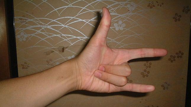 ¿Cómo se diagnostica el dedo en gatillo?