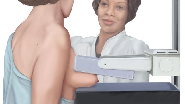 Despistaje de cáncer de mama, ¿qué es?