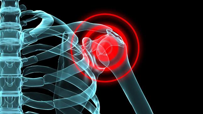 ¿Cómo se diagnostica el dolor de hombro?