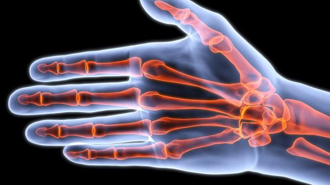 Causas y tratamiento del dolor de manos