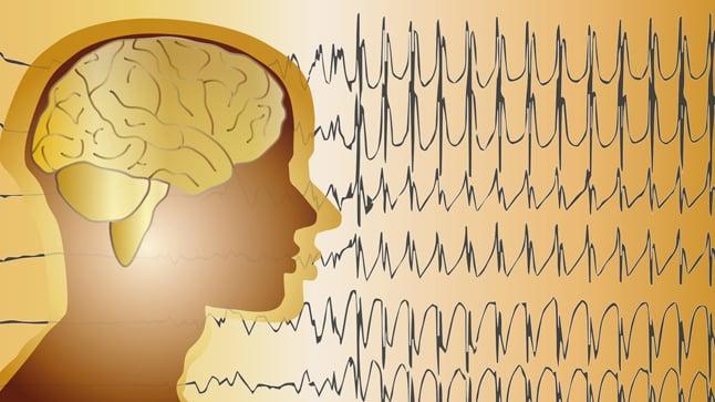 ¿Cuándo se solicita un electroencefalograma?
