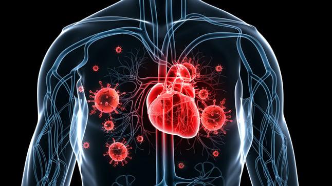 Causas, síntomas y tratamiento de la endocarditis