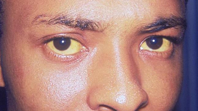 Causas, síntomas y tratamiento de la enfermedad de Crigler-Najjar