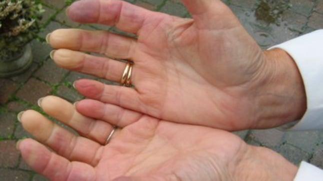 ¿Cuáles son las causas de la enfermedad de Raynaud?