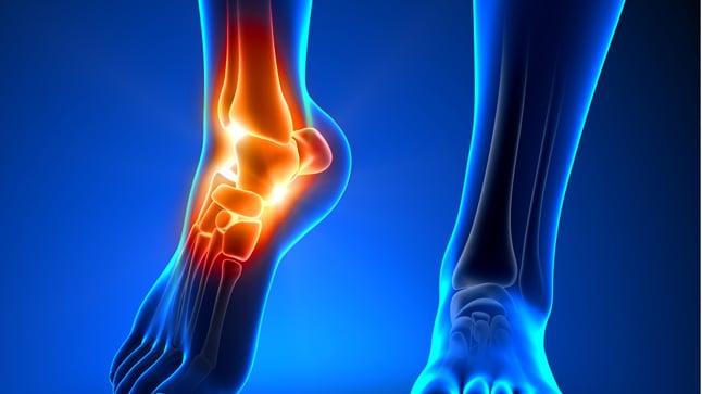Causas, tipos y tratamiento de los esguinces de tobillo