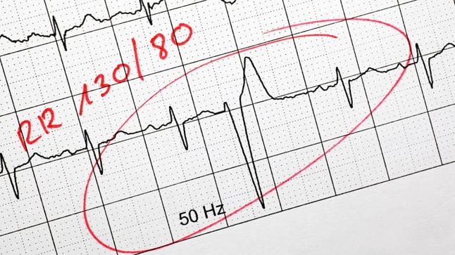¿Cómo se diagnostican los extrasístoles?