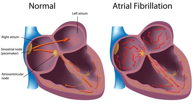 Causas, síntomas y tratamiento de la fibrilación auricular