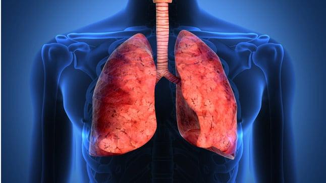 ¿Es contagiosa la fibrosis pulmonar?