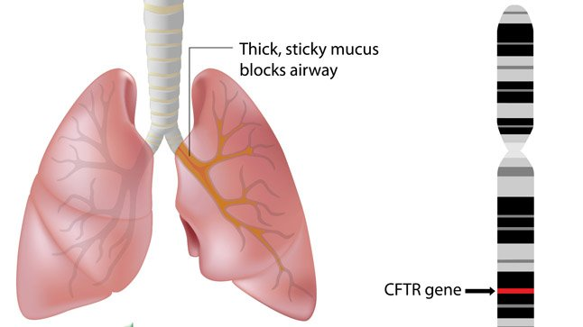 Causas, síntomas y tratamiento de la fibrosis quística