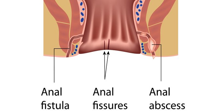 ¿Cómo se diagnostica una fisura anal?