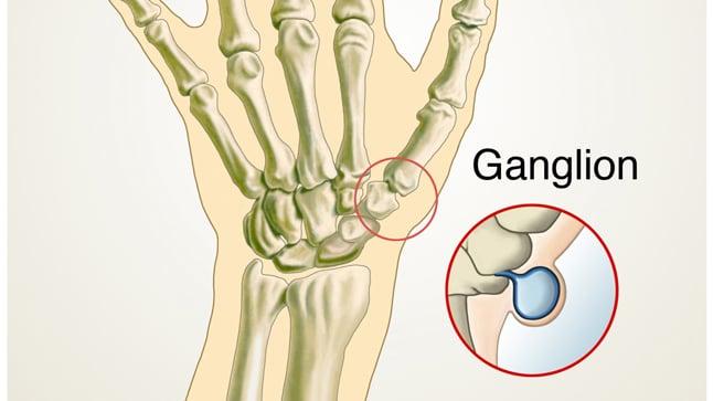 ¿Cómo se diagnostican los gangliones?