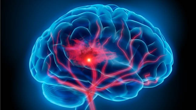Causas, síntomas y tratamiento de la hemorragia cerebral