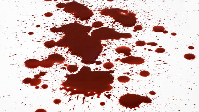¿Cómo se diagnostica una hemorragia digestiva?